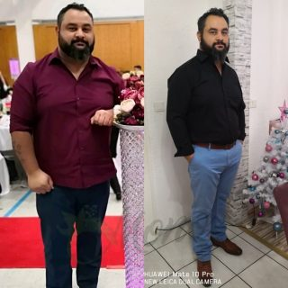 Gastric Bypass Surgery re