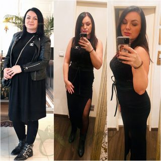 Gastric Sleeve-Surgery In Turkey