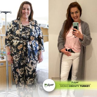 gastric sleeve turkey, gastric balloon prices europe, obesity cl