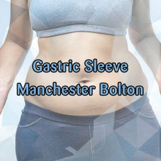Manchester Bolton gastric sleeve