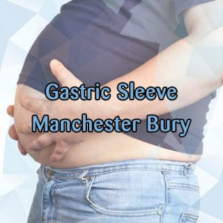 Gastric sleeve bury Manchester prices