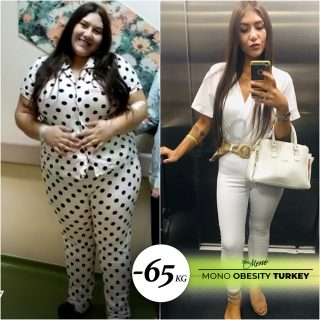 Weight loss surgery-Types