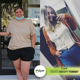 affordable-weight-loss-surgery
