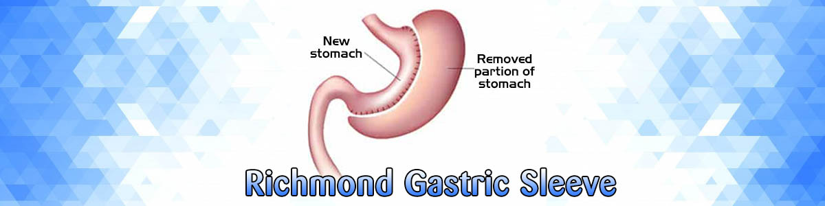london-richmond-gastric-sleeve.jpg