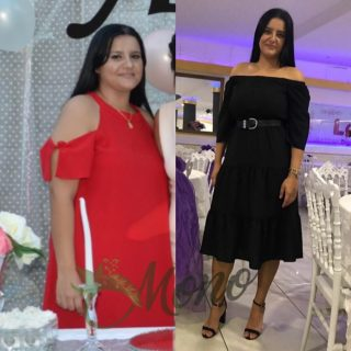how much is a gastric sleeve