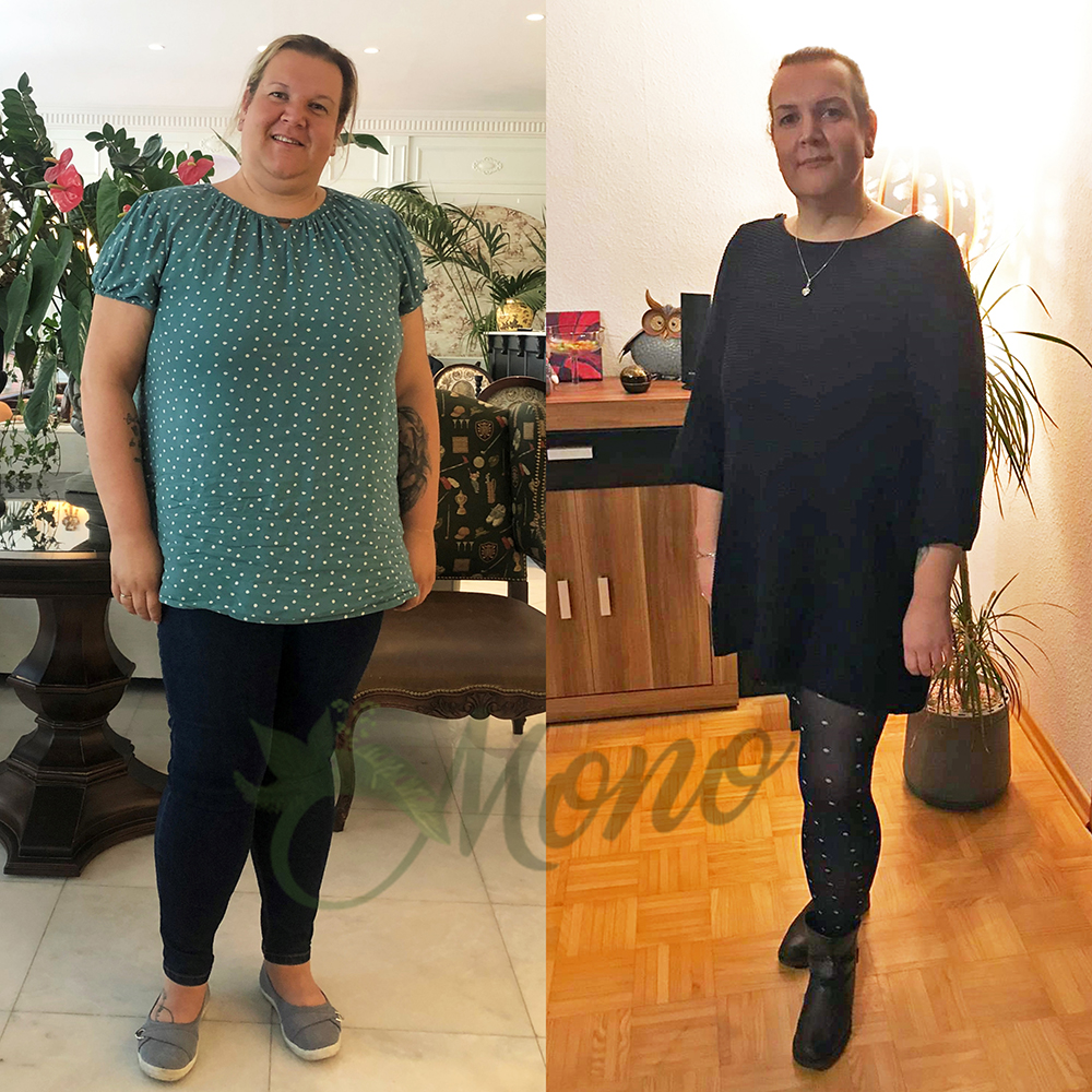 gastric sleeve cost