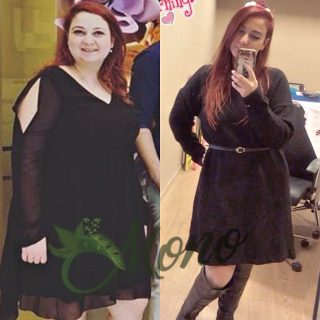 weight loss surgeries in manchester