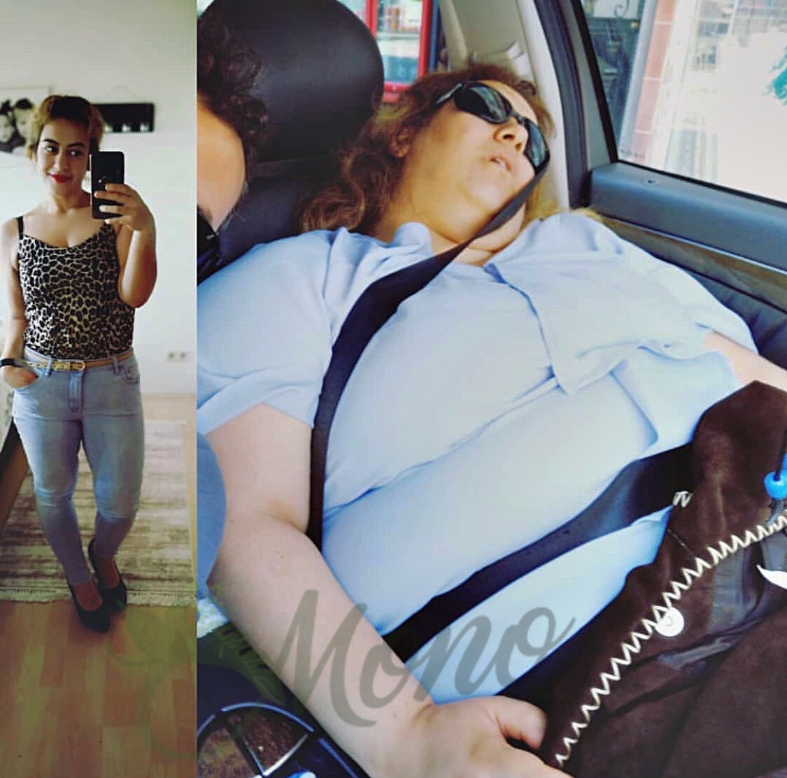 Side Effects of Gastric Sleeve Surgery