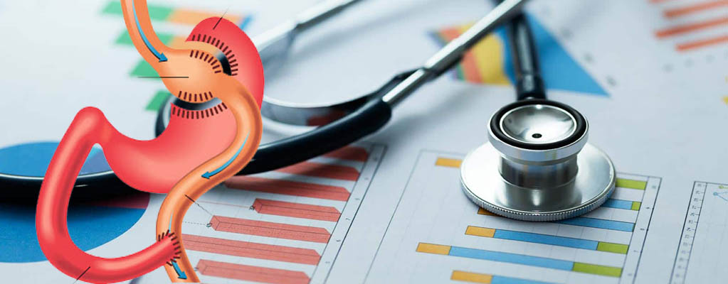 Average Cost of Gastric Bypass