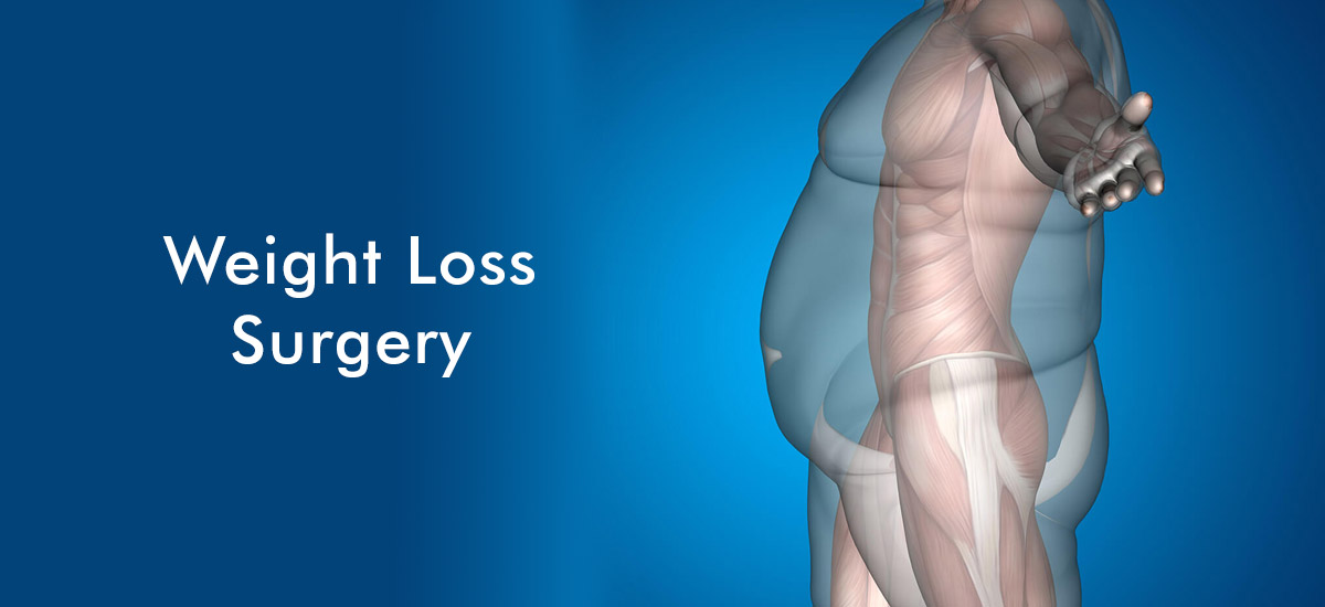weight-loss-slim-surgery-uk-4.jpg